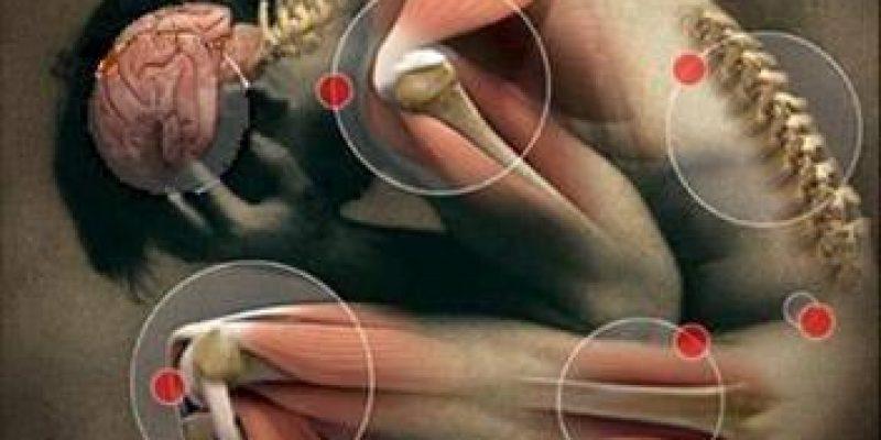 La artrósis