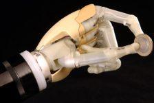 Prótesis Biónica de mano