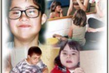 Sindrome de down – Trisomía 21