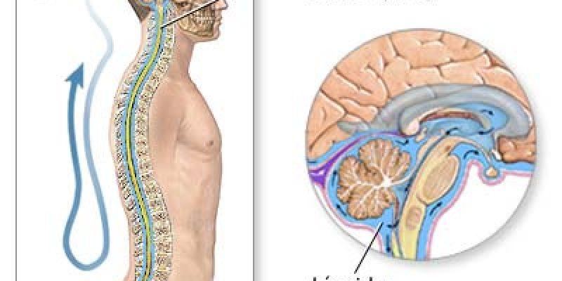 Investigadores hallan clave para revertir daños de la esclerosis mútiple