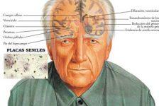 Alzheimer destruye células nerviosas olfativas