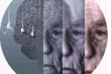 Hoy 21 de septiembre conmemoramos el día Mundial del Alzheimer