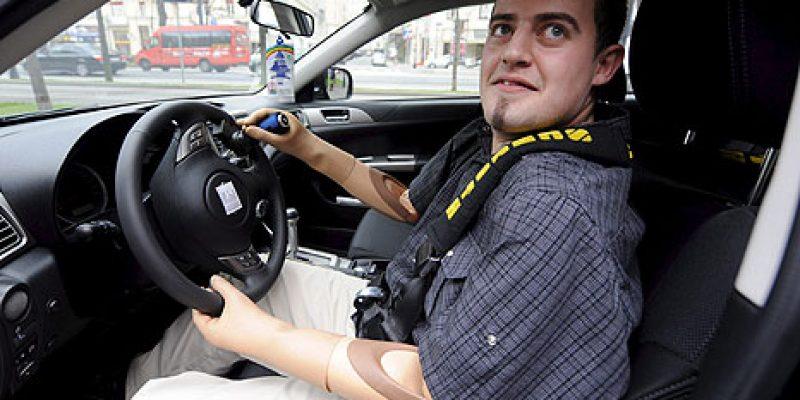 Muere primer conductor de brazo biónico controlado por el cerebro