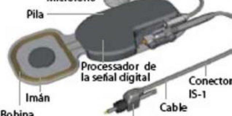 España – Hospital general de Elche incorpora nueva técnica contra la sordera