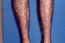 Enfermedad de Charcot-Marie-Tooth, trastorno neurológico progresivo