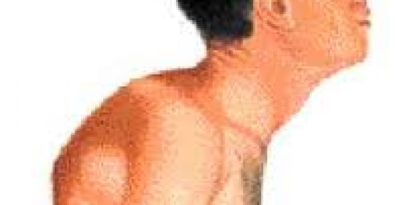 Espondilitis Anquilosante – Enfermedad reumática de la columna vertebral