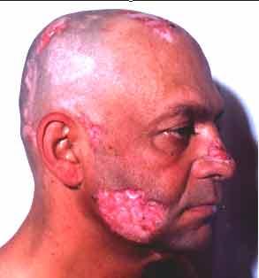 sintomas del lupus eritematoso en hombres