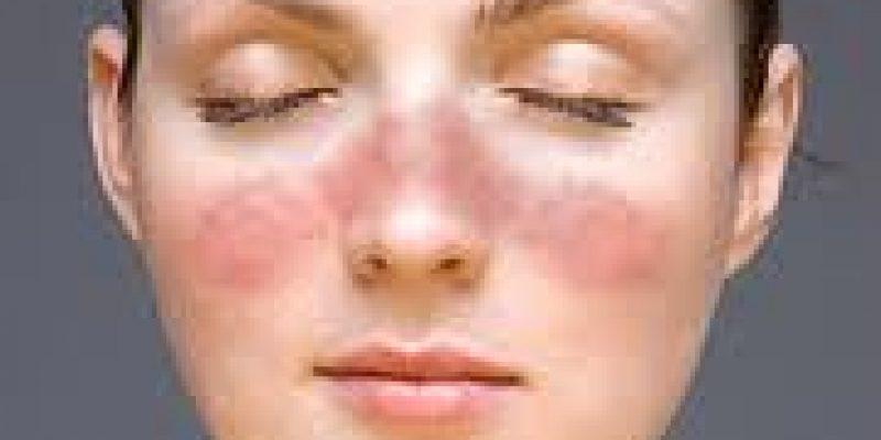 Lupus – Enfermedad autoinmune, afecta la piel, los riñones y el sistema nervioso