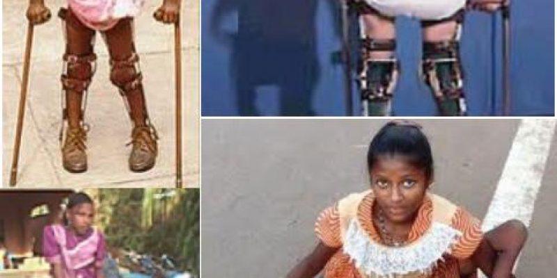 La Poliomielitis o Parálisis Infantil