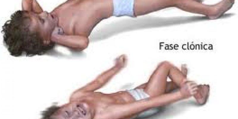 El Síndrome de West – Espasmos infantiles que ataca a niños menores de 1 año