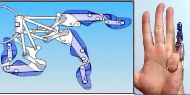 X-Finger – Primera prótesis mecánica para amputación de dedo