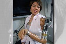 La mujer Biónica – Claudia Mitchell, primera mujer con prótesis biónica