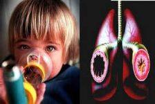 Medicina para el asma podría beneficiar a pacientes con esclerosis múltiple