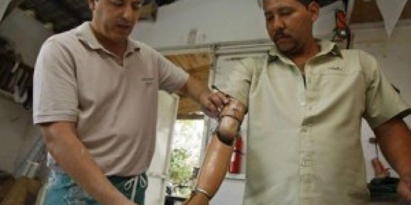 La tecnología ortopédica de Latinoamérica es obsoleta