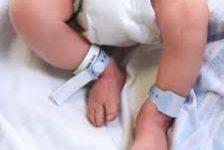Rehabilitación y tratamientos del bebe con espina bifida