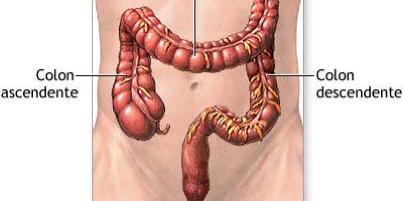 Lesión medular – Intestino Neurogénico