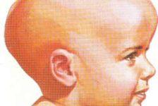 Síndrome de Apert, enfermedad infantil que afecta a 1 de cada 200 mil niños