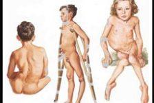 Polio: Secuelas de la enfermedad