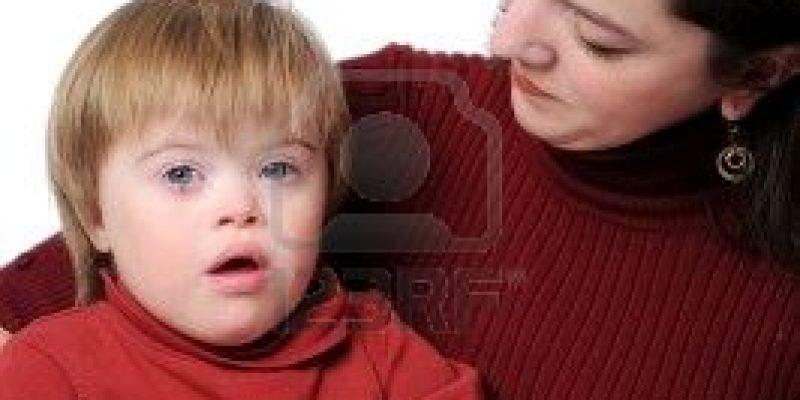 Síndrome de Down: Cuidados del bebé Down