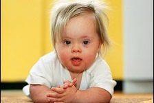 Síndrome de Down: Diagnóstico prenatal