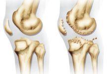 Artrosis: Guia de la enfermedad para pacientes artrosicos
