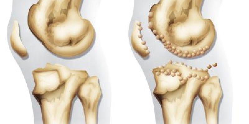 Artrosis guía de atención primaria