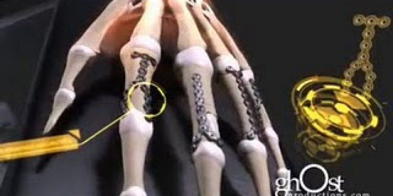 Traumatología y Cirugía Ortopédica animación 3D politraumatísmo