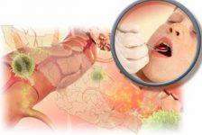 Tratamiento oral para esclerosis múltiple llega a méxico
