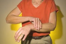 Artritis reumatoide como vivir con la enfermedad