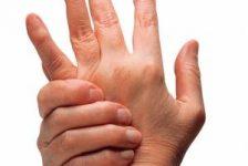 Artritis reumatoide rehabilitación guía práctica