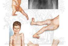 Artrogriposis contracturas múltiples congénitas