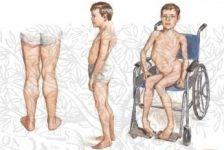 Enfermedades degenerativas Distrofia Muscular Congénita