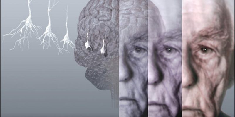 Enfermedades neurodegenerativas una nueva visión