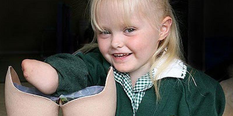 Discapacidad superación historia de Ellie Challis