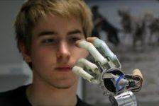 Elige amputación para colocarse prótesis biónica