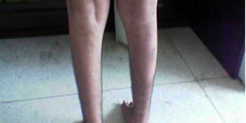 Distrofia muscular de Becker trastorno hereditario degenerativo
