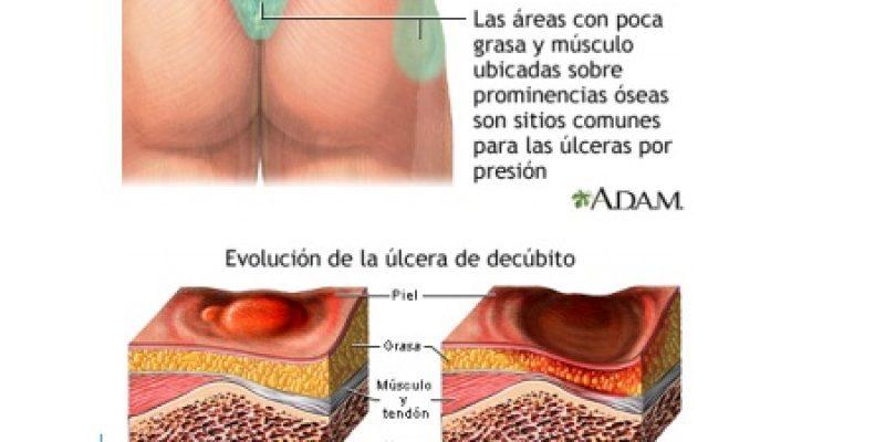 Escaras heridas en la piel por falta de circulación