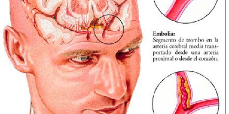 Accidente cerebro vascular guía de ejercicios en casa
