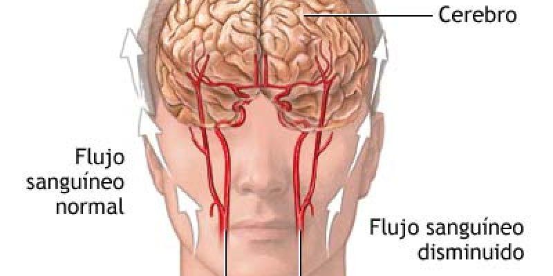 ACV accidente cerebrovascular guía de prevención