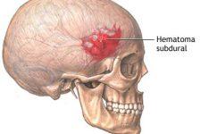 Aneurisma cerebral definición síntomas y tratamiento