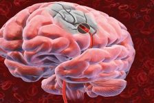 Enfermedad cerebrovascular guía de prácticas clínicas