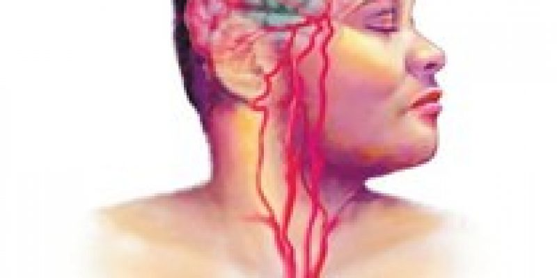 Ictus isquémico guía clínica en neurorradiología