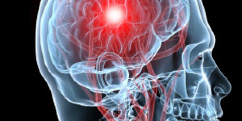 Infarto cerebral 3 síntomas para detectarlo