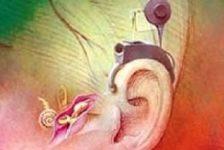 Sordera y tecología el implante coclear