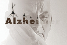 Alzheimer causas diagnóstico y tratamientos