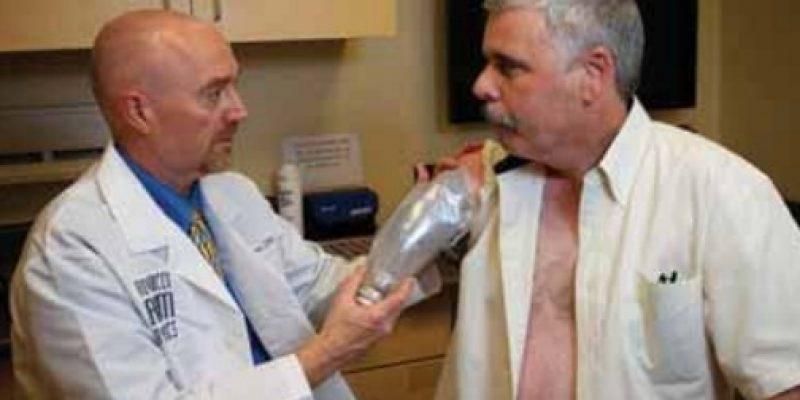Amputación de miembro superior los 12 meses luego de la intervención