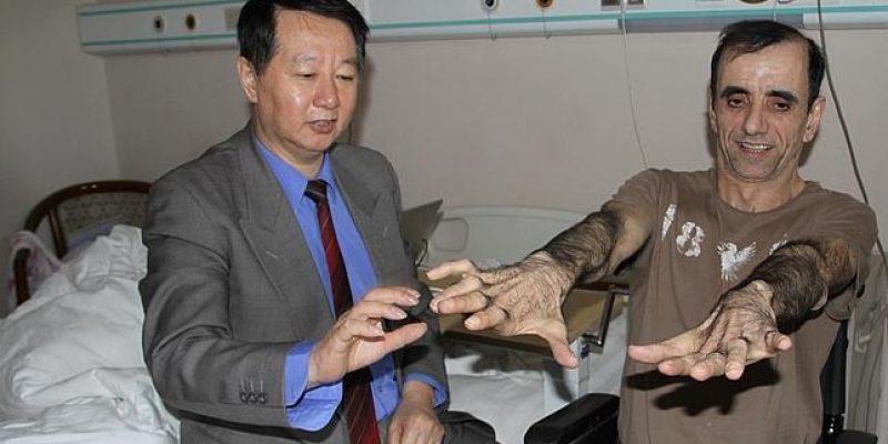Células madre y enfermedades degenerativas tratamiento en China