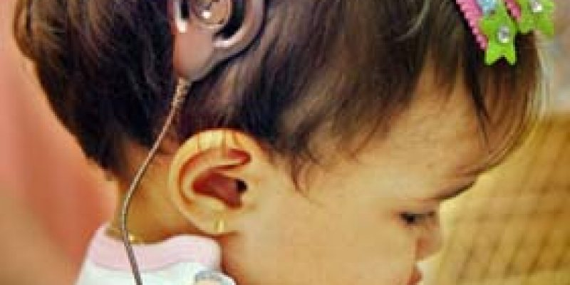 Discapacidad auditiva y atención temprana
