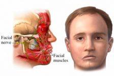 Parálisis Facial Periférica concepto y tratamiento fisioterapéutico