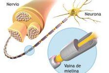 Enfermedades degenerativas Psicosomatica de la esclerosis múltiple
